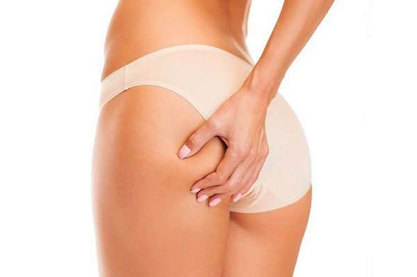 cellulite treatments that work