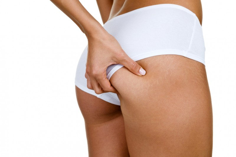 Cellulite on the hip